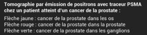 Explication du schéma prostate